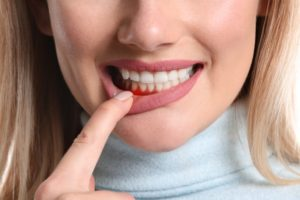 Woman pulling down lip showing signs of gum disease