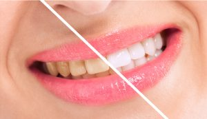 Did you know your smile can be drastically improved by your cosmetic dentist in Painesville?