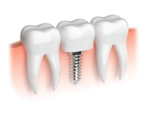 dental implants in Jefferson